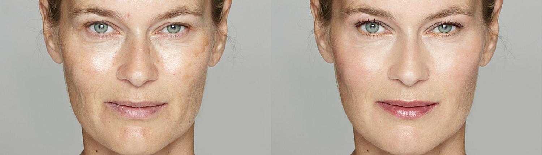 Anti-aging behandeling
