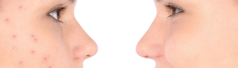 Behandeling acne